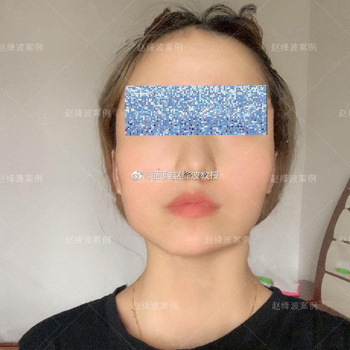 赵绛波医生做磨骨下颌角改脸型技术靠谱吗?