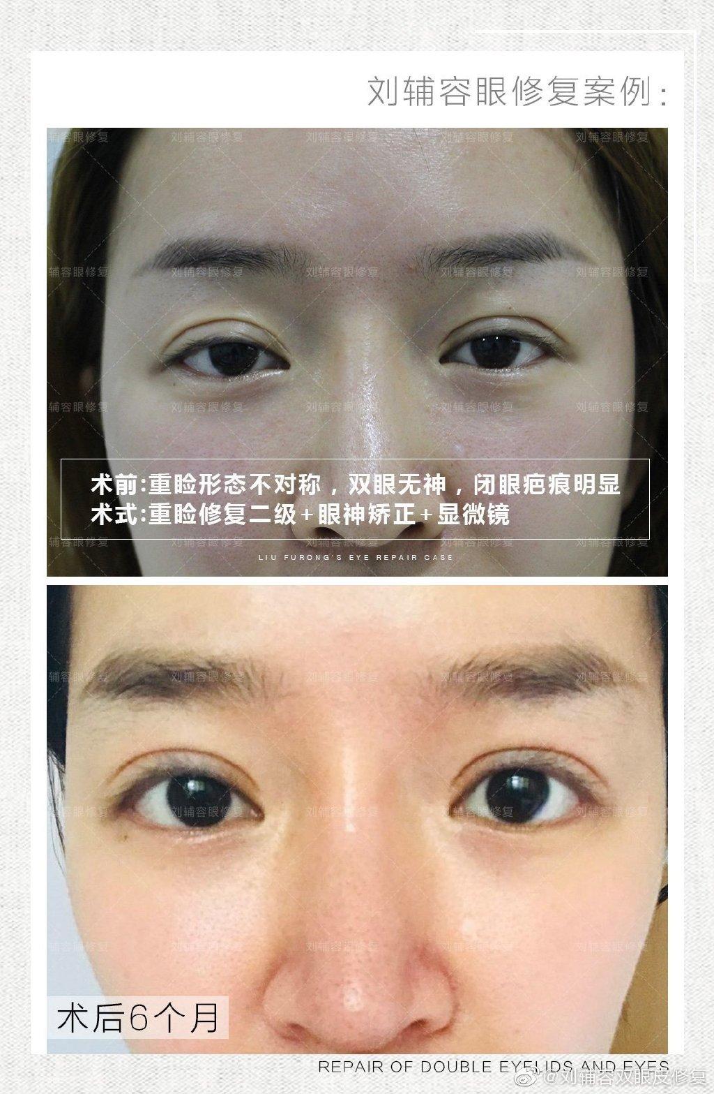 刘辅容双眼皮修复案例