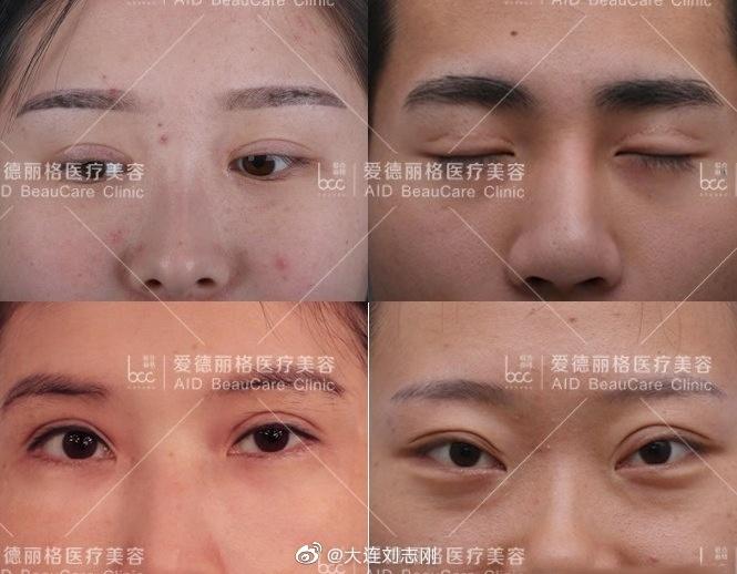 刘志刚双眼皮修复案例