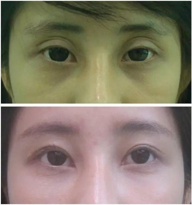 于晓波双眼皮修复案例