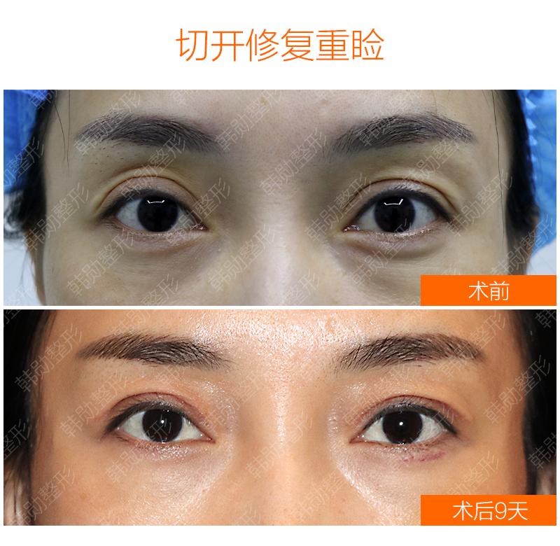 韩勋双眼皮修复案例