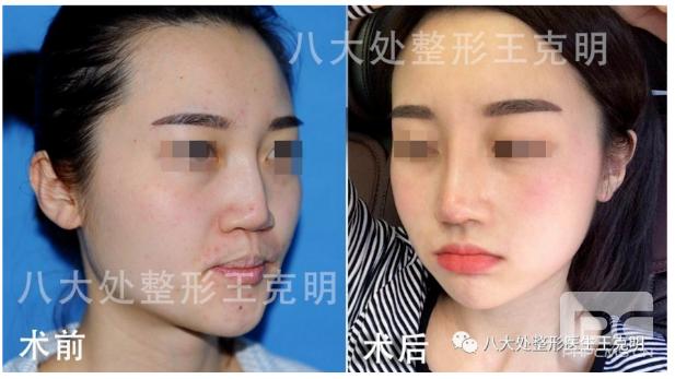 国内最好的鼻子修复专家是哪位?
