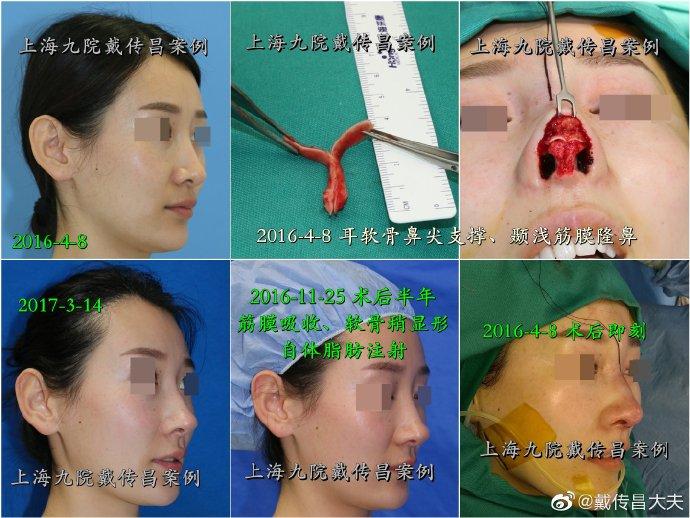 国内最厉害的鼻修复专家:范飞和戴传昌哪个好?