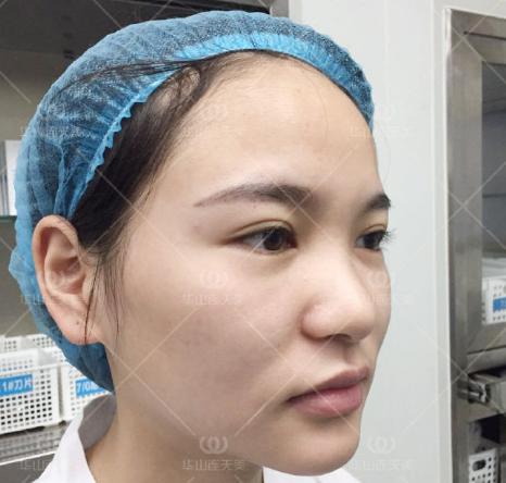 杭州刘军和张龙修复鼻子哪个好?张龙和刘军隆鼻修复案例对比