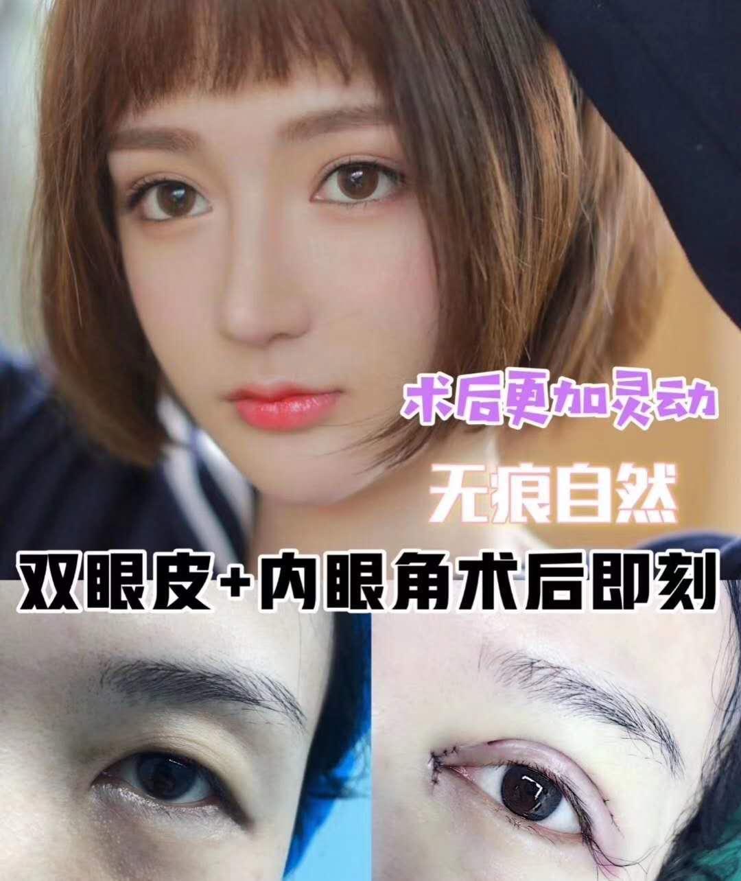 上海九院雙眼皮哪個醫生比較好?上海九院雙眼皮多少錢?