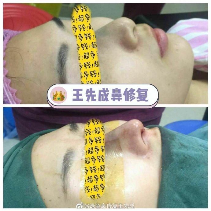 王先成鼻修复案例