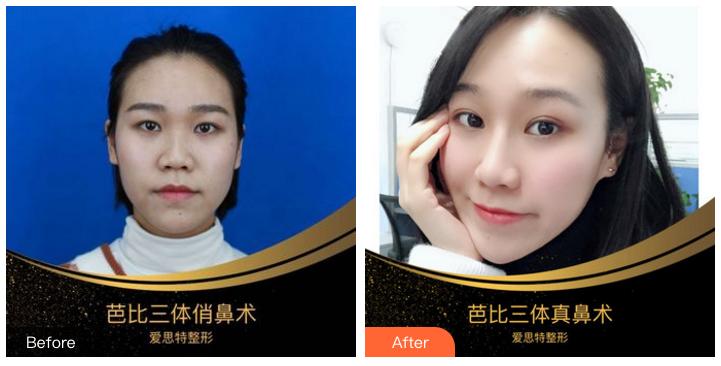 吴蒙鼻综合案例