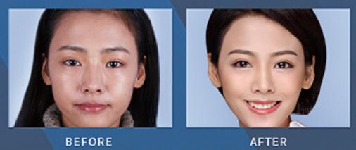 西安双眼皮修复医生哪个医生好?西安双眼皮修复医生排行榜