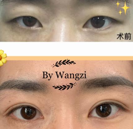 王梓双眼皮案例