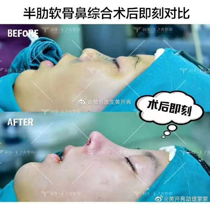 黄开亮鼻综合案例
