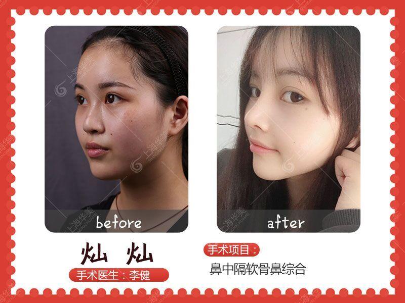 上海整鼻子最好的医生是谁?上海鼻子做的最好的医生预约排行榜
