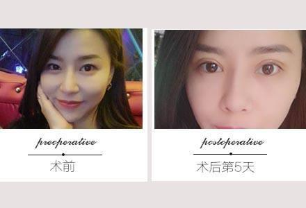 广州双眼皮修复哪个医生比较好?广州双眼皮修复医生排行榜
