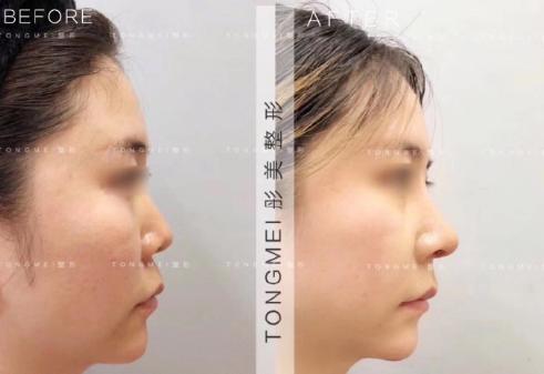 北京鼻子做的好的醫生是哪個?北京整鼻子專家預約排行榜