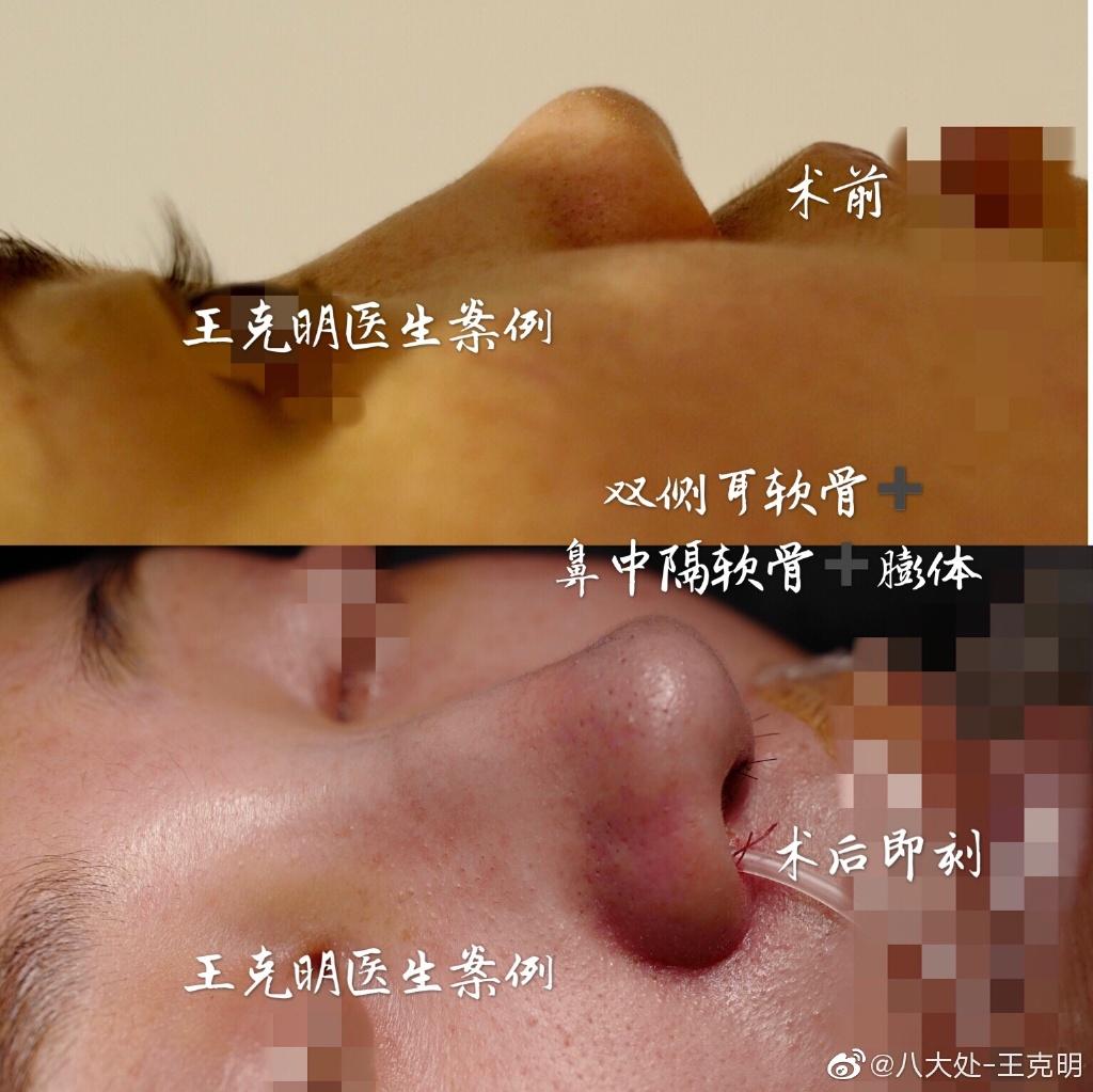 王克明鼻子案例