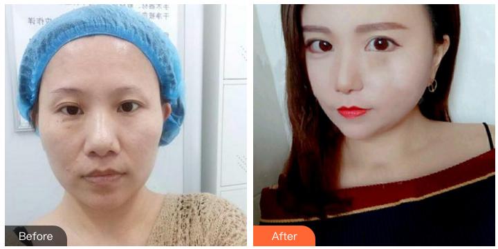 郑州双眼皮修复哪个医院最好?郑州双眼皮修复排行榜预约