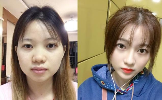 国内做鼻子最好的专家排名 中国隆鼻专家前十名