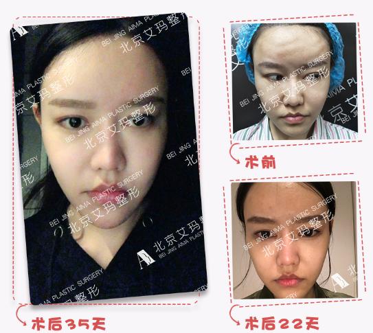 北京哪个医生做脂肪修复好?