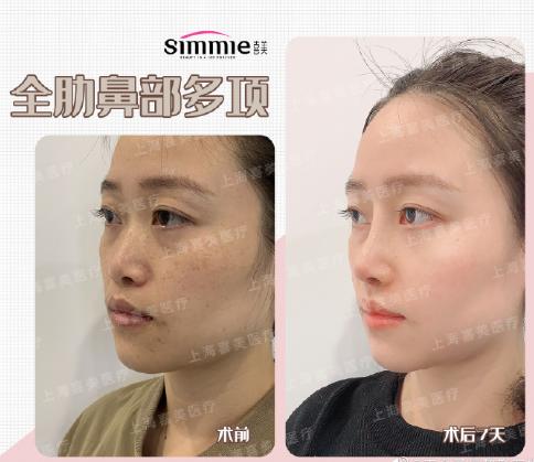 上海做鼻子好的医生有哪些?