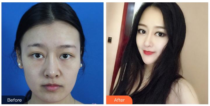 郑州鼻修复专家哪个最好?