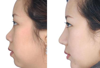 中国鼻修复最好的专家是谁?