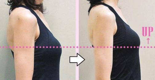 北京胸部下垂提升哪个医生擅长?穆大力和韩啸谁做丰胸技术好?