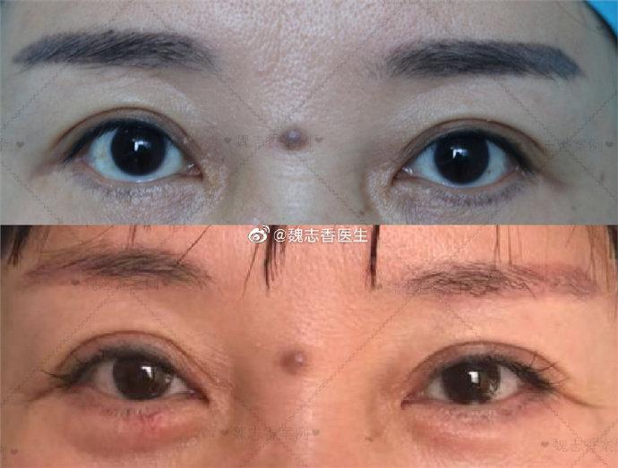 國內修復雙眼皮的十大專家預約排名 中國雙眼皮修復醫生排行榜