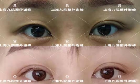 上海九院谁双眼皮修复做得好?上海双眼皮修复医生预约排名