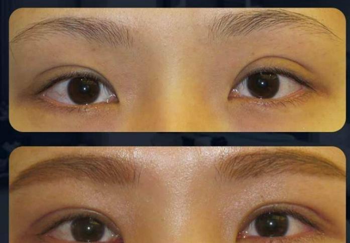 武汉双眼皮修复厉害的医生是谁?武汉修复双眼皮医生预约排名