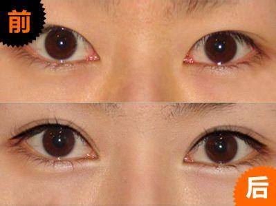 厦门哪个公立医院的医生做双眼皮比较好?厦门双眼皮医院医生预约
