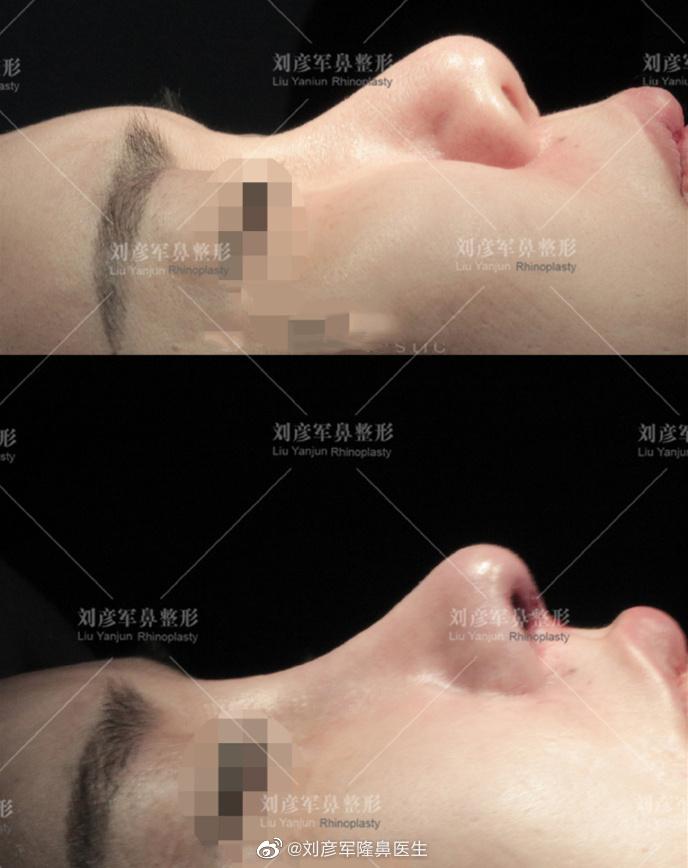 刘彦军鼻修复案例