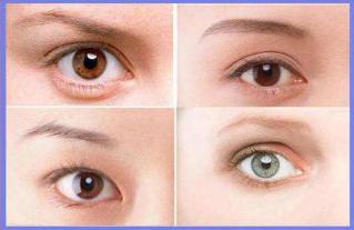 雙眼皮修復專家張冰潔和劉風卓哪個好?劉風卓張冰潔眼修復案例預約