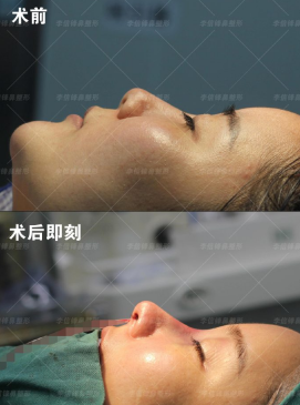 深圳隆鼻医生哪个好?深圳鼻子做得好的医生预约排名