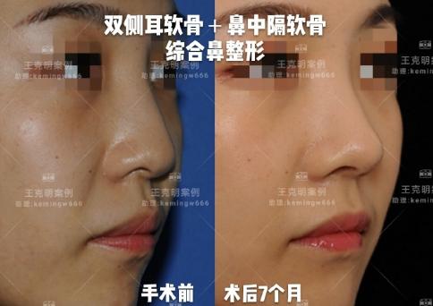 北京八大处鼻综合谁做得好?八大处鼻综合预约最多的专家排名