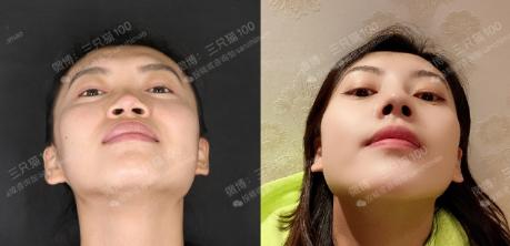 中国做鼻综合最厉害的医生排名有哪些?