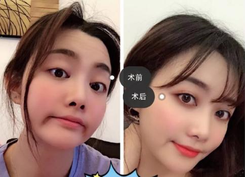 李艳东双眼皮案例