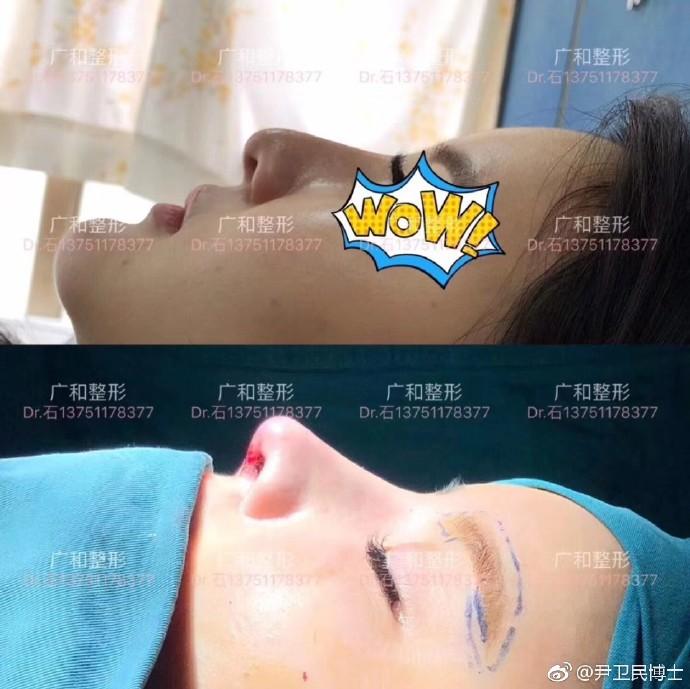 尹卫民鼻修复案例