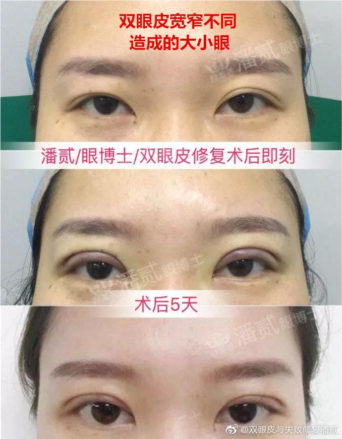 潘贰双眼皮修复案例