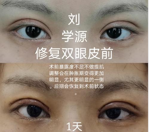山东比较好的眼修复专家有哪些?山东眼修复医生预约大全
