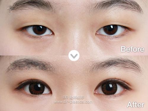 中国眼部最权威的整形医生预约排名大全