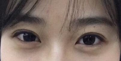 上海九院割双眼皮最好的医生谁好?朱惠敏苏薇洁顾斌朱海男王丹茹
