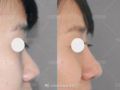 中国名气最大做鼻综合专家前十名预约排行榜