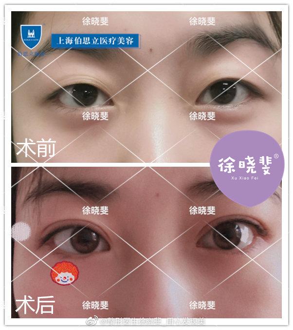徐晓斐双眼皮案例