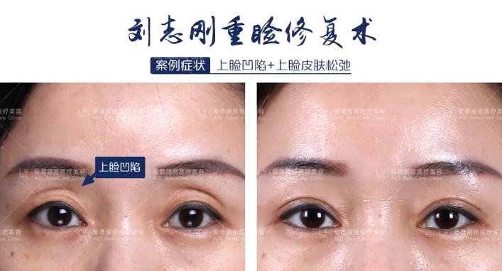 大连刘志刚高难度双眼皮修复案例