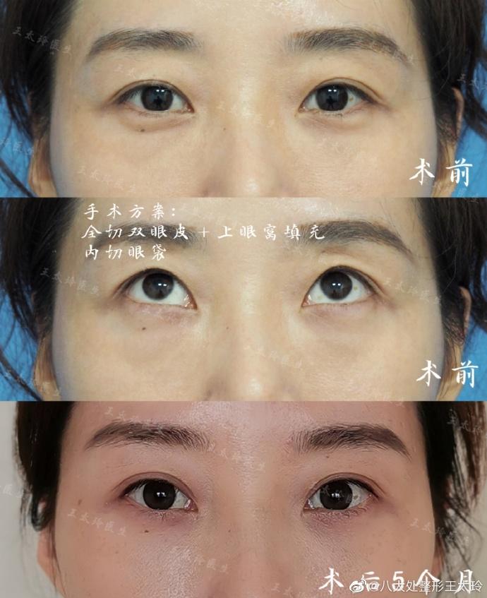王太玲双眼皮案例