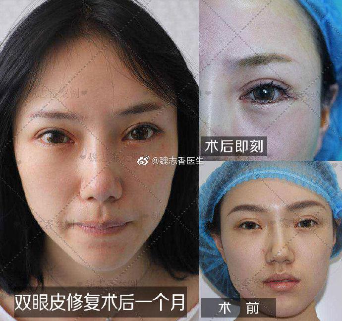 魏志香双眼皮修复案例