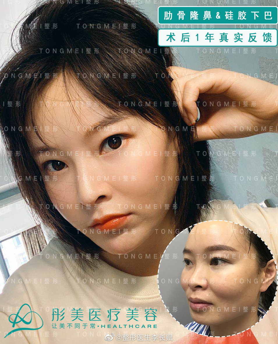 中国谁垫鼻子技术最好?中国垫鼻子技术最好的专家排行榜