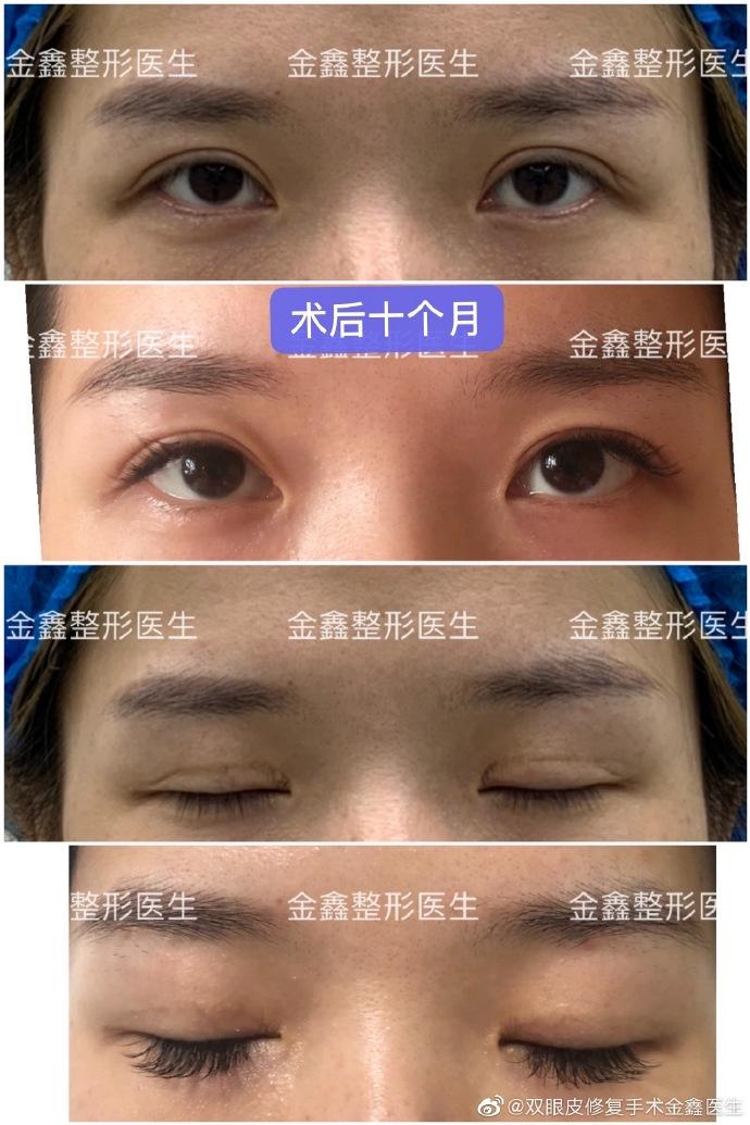 金鑫双眼皮修复案例