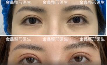 深圳金鑫修复双眼皮怎么样?