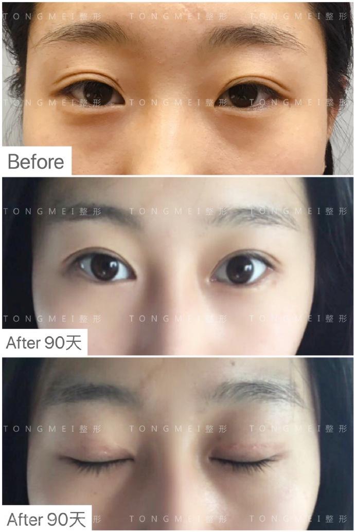 刘风卓双眼皮修复案例