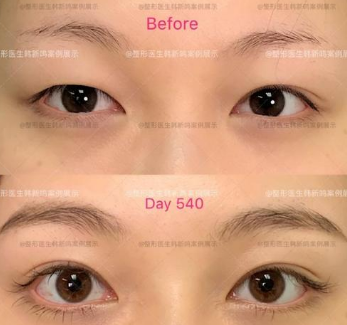 北京双眼皮修复韩新鸣效果怎么样?